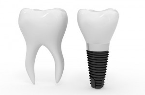 dental implants in one day 300x197 Dental Implants in One Day