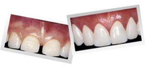 dental veneers cost 300x144 Cosmetic Veneers Cost