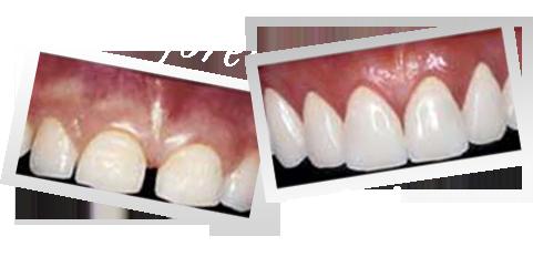 Cosmetic Veneers Cost drdentalimplantscomVeneers Cost Per Tooth