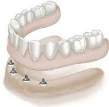 full denture cost Full Denture Cost
