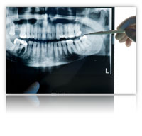 full set of dental implants Full Set of Dental Implants