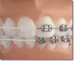 how much are braces 300x249 How Much Are Braces