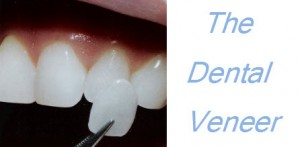how much are veneers 300x147 How Much Are Veneers