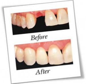 tooth loss and dental implant 300x293 Dental Implants