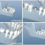 bone graft for dental implant 150x150 Bone Graft for Dental Implant