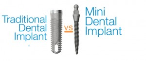 mini dental implants vs traditional implants1 300x125 Mini Dental Implants vs Traditional Implants